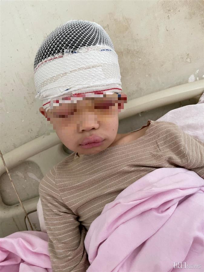 惊!9岁男孩被老师体罚致头皮头骨分离