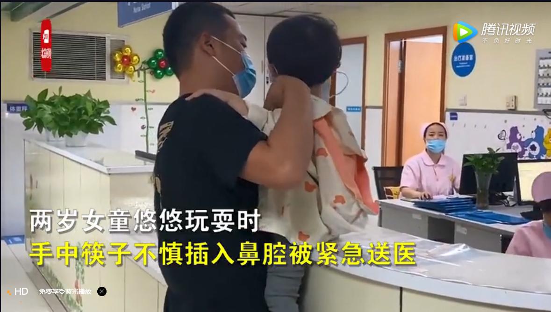 2岁女童摔倒筷子从鼻腔插进眼眶